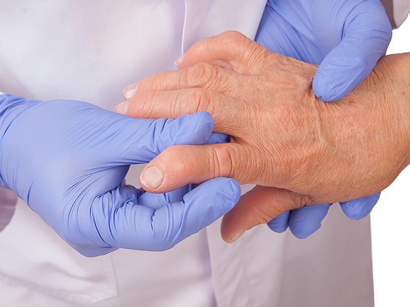 romatizmal hastalıklarda fizik tedavi