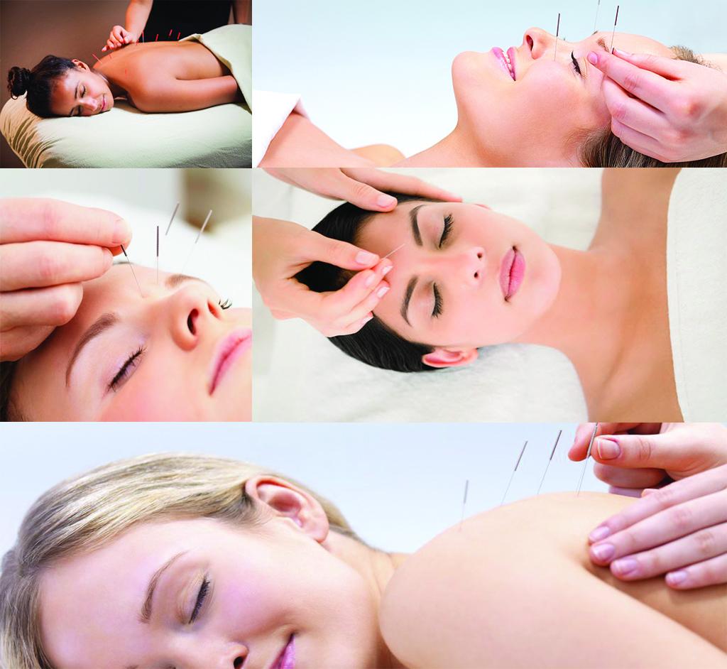 bodruAkupunktur İle Zayıflamam akupunktur